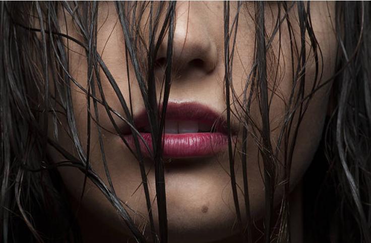 Oily hair image